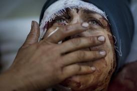 1st Prize General News Single Rodrigo Abd, Argentina, The Associated Press 10 de marzo de 2012, Idib, Siria. Aida llorando mientras se recupera de las graves heridas sufridas cuando su casa fue bombardeada por el ejército sirio. Su marido y sus hijos fueron heridos de muerte.